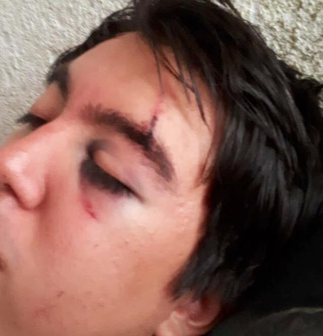 pasajero uber golpeado
