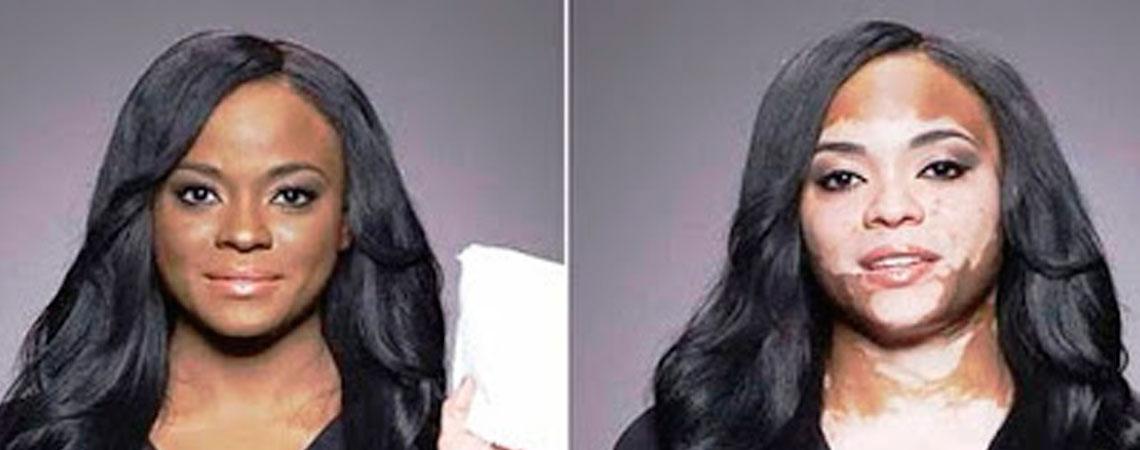 Resultado de imagen para vitiligo