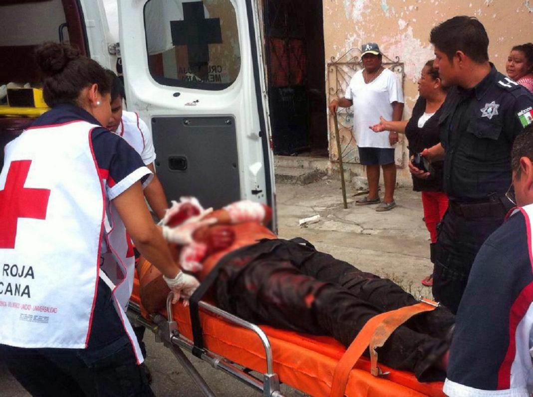 """De machetazo, le """"vuelan"""" la nariz a hijo de regidor en Villa de Reyes - Código San Luis"""